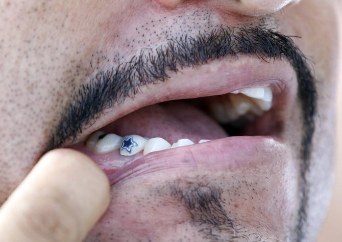 Dallas Cowboys Photos Tony Romo Is Money Fan Has Proof Tooth